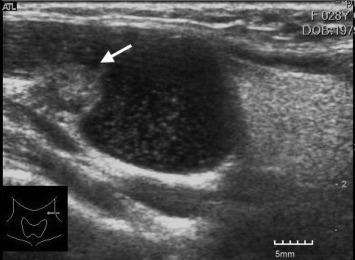 complicaciones de oxiuros cancerul gastric se mosteneste
