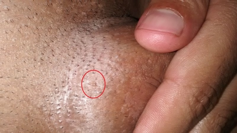 hpv warts dormant