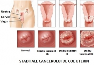 simptome cancer colon femei