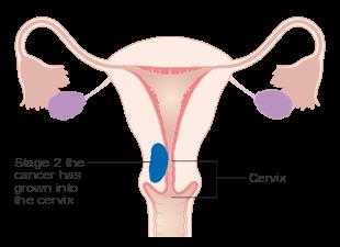 uterine cancer metastasis