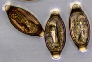 papillomavirus contamination squamous cell papilloma esophagus