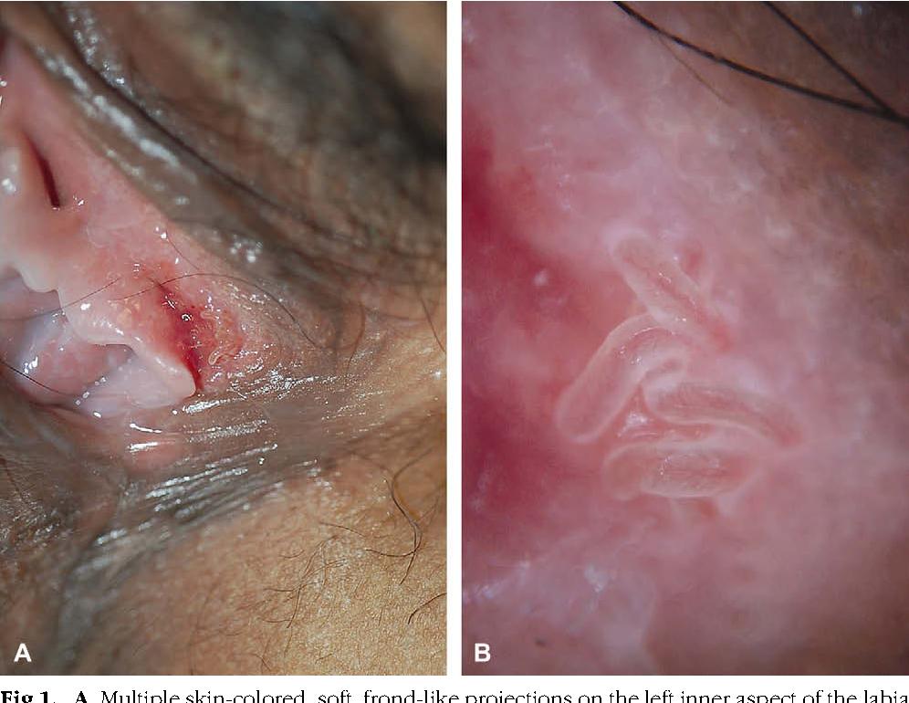 papilloma virus vaccino copertura virus papiloma colul uterin