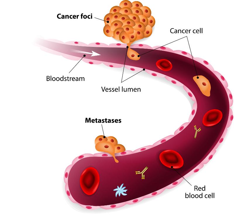 sarcoma cancer last stage
