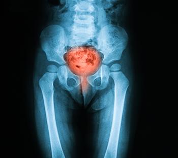 cancer vezica urinara la copii