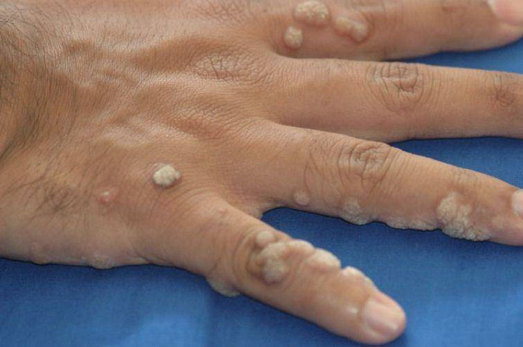 warts on hands caused by