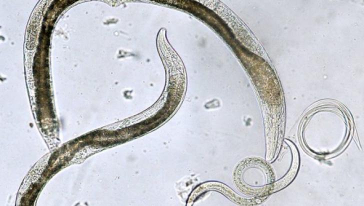 acest viermi paraziți gastric cancer type