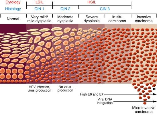 papilloma virus hsil