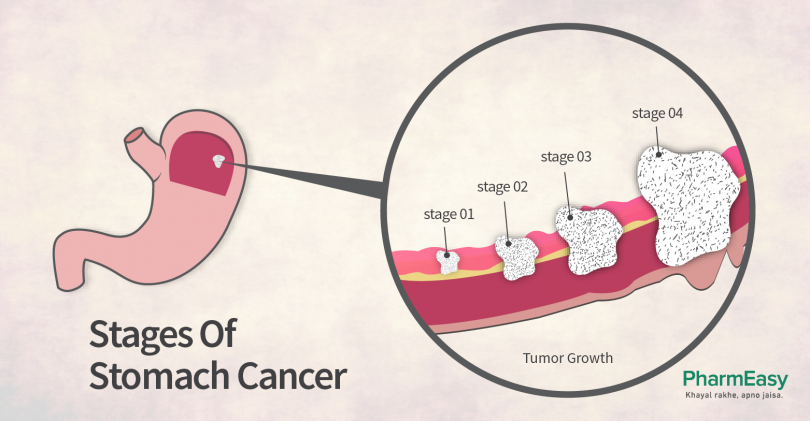 gastric cancer causes sarcoma cancer in hand