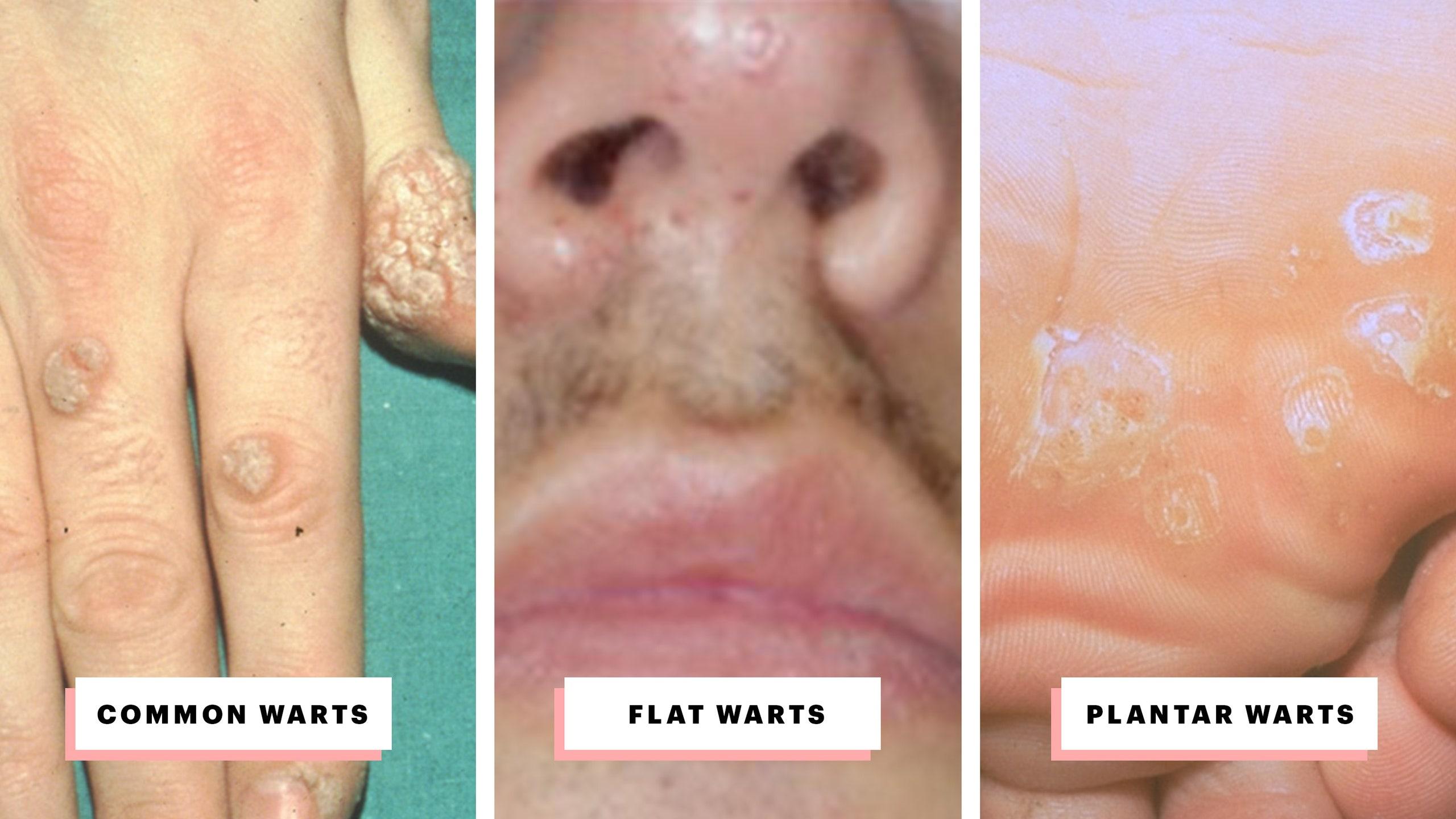human papillomavirus warts on face