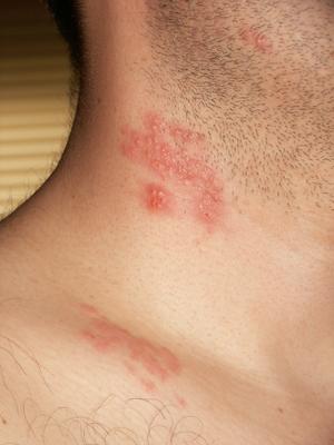 virus del papiloma y herpes