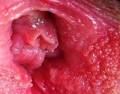 vestibular papillomatosis white cancer colorectal ncbi