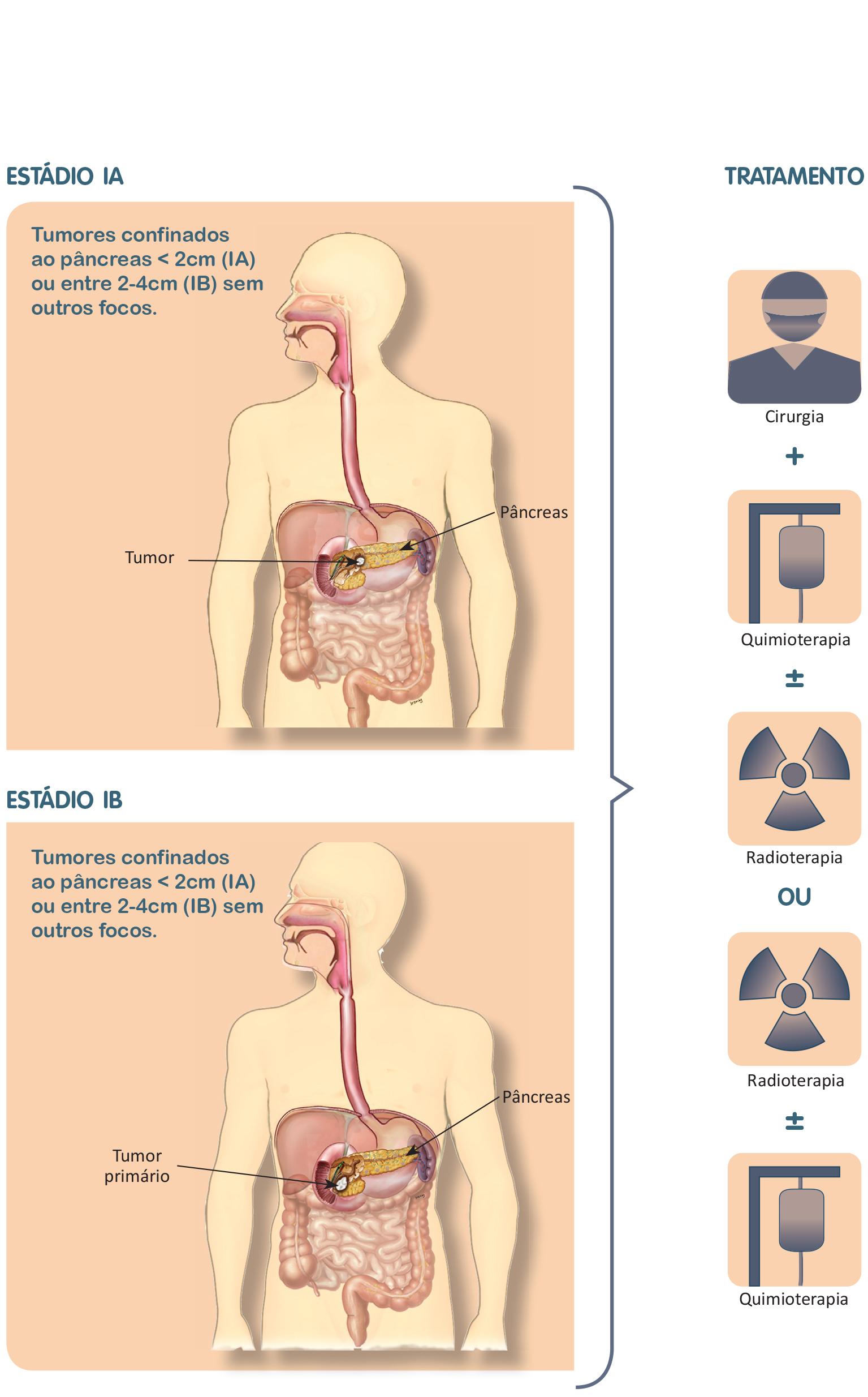 cancer de pancreas maligno