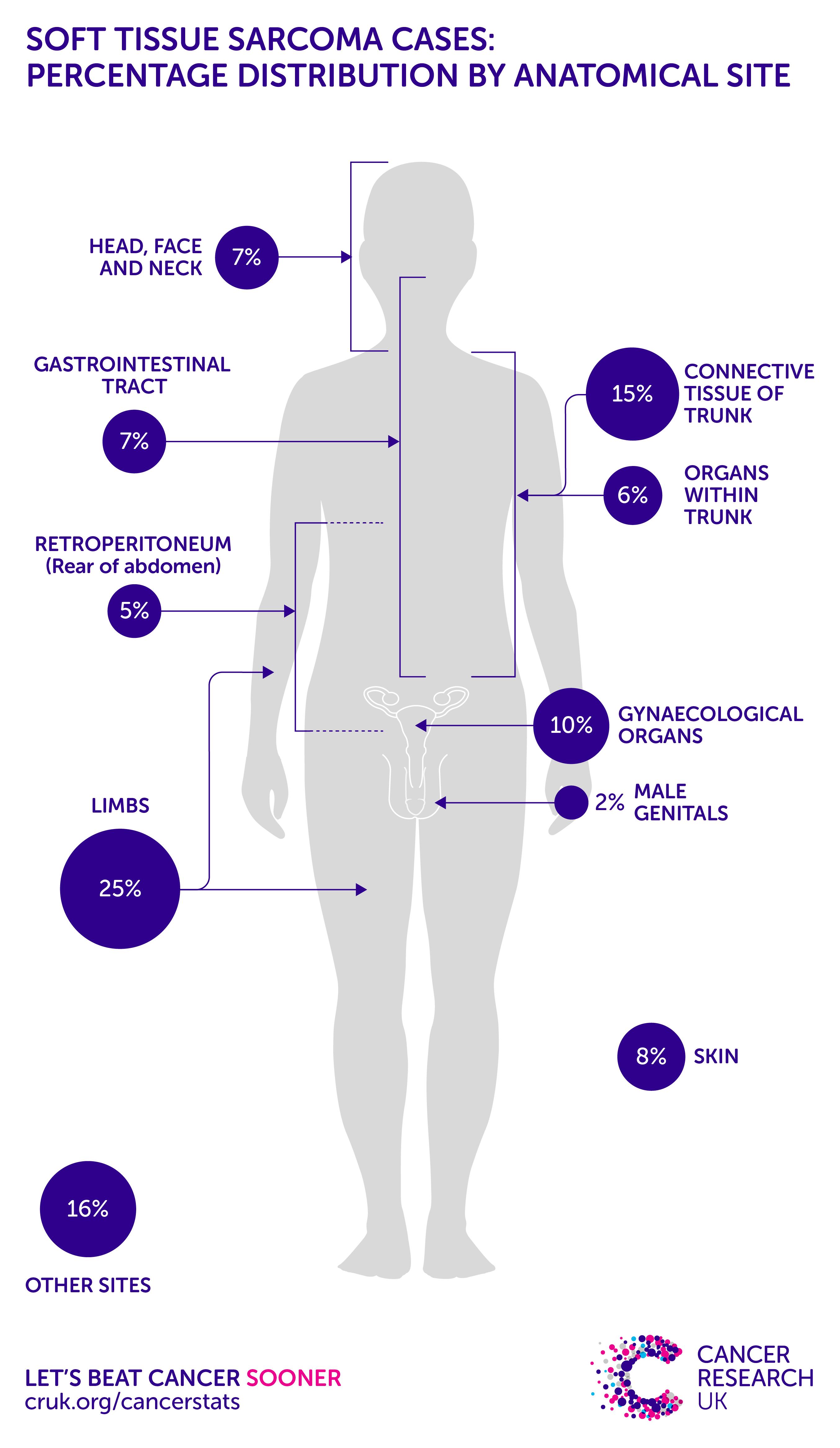 sarcoma cancer research uk