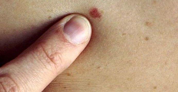 metastatic cancer bowel