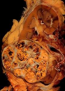 cancer renal macroscopia que medicamento es bueno para oxiuros