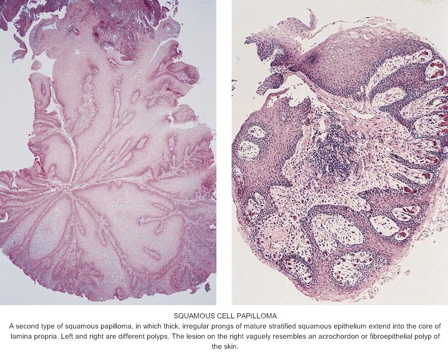 squamous cell papilloma esophagus cancerul de oase manifestari