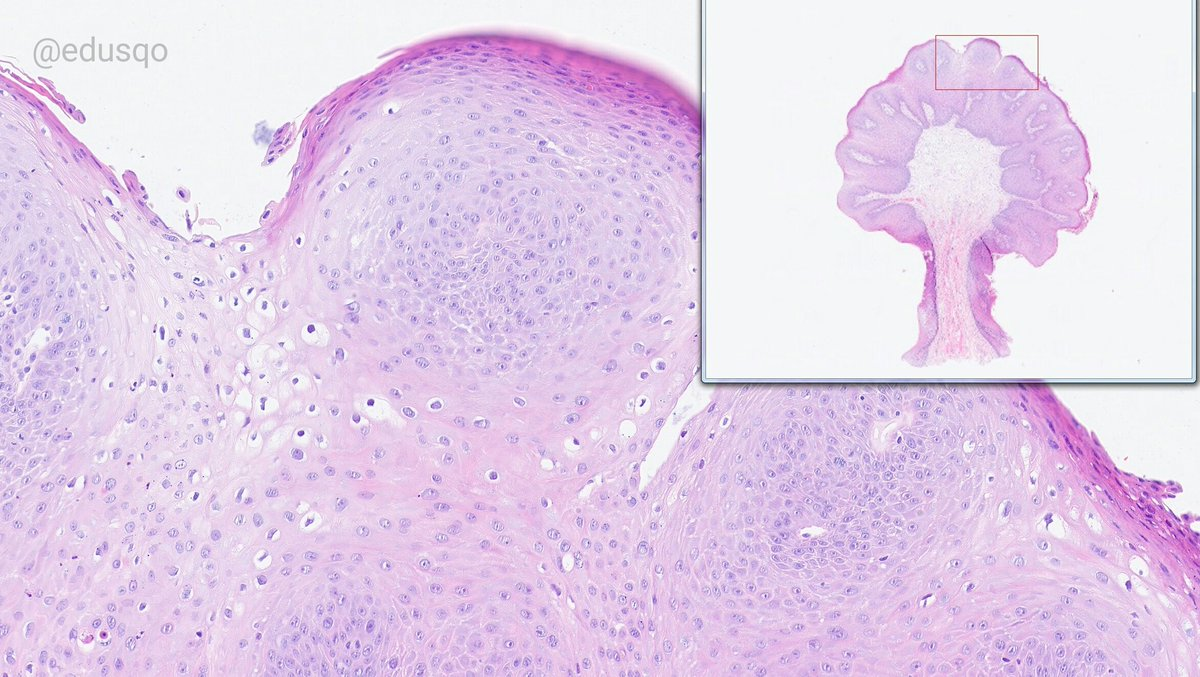 is squamous papilloma always hpv hpv symptomes bouche