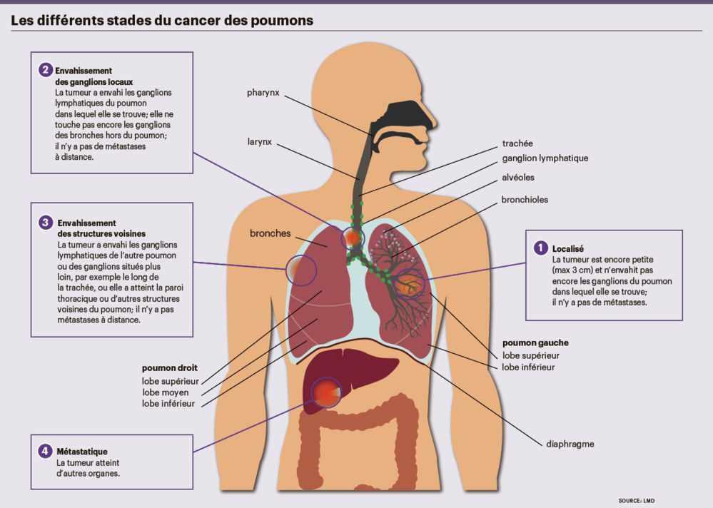cancer pancreas guerissable