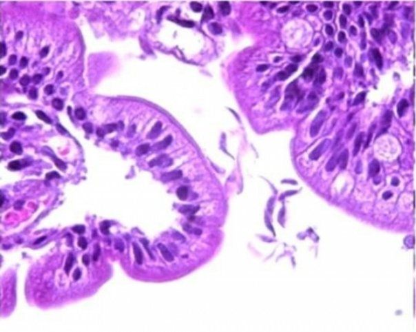 oxiuri limbrici cancer ovarian treatment