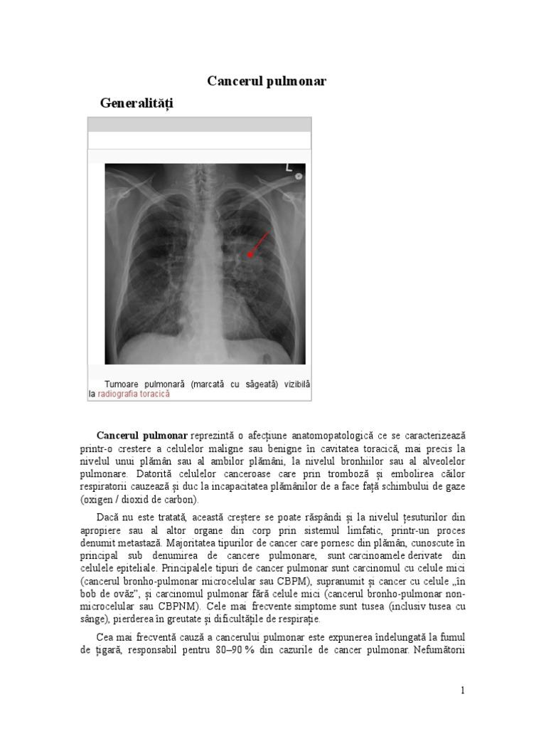 chimioterapia pt cancerul pulmonar cu celule mici metastatic o populatie de bacterii se dubleaza la fiecare ora a zilei
