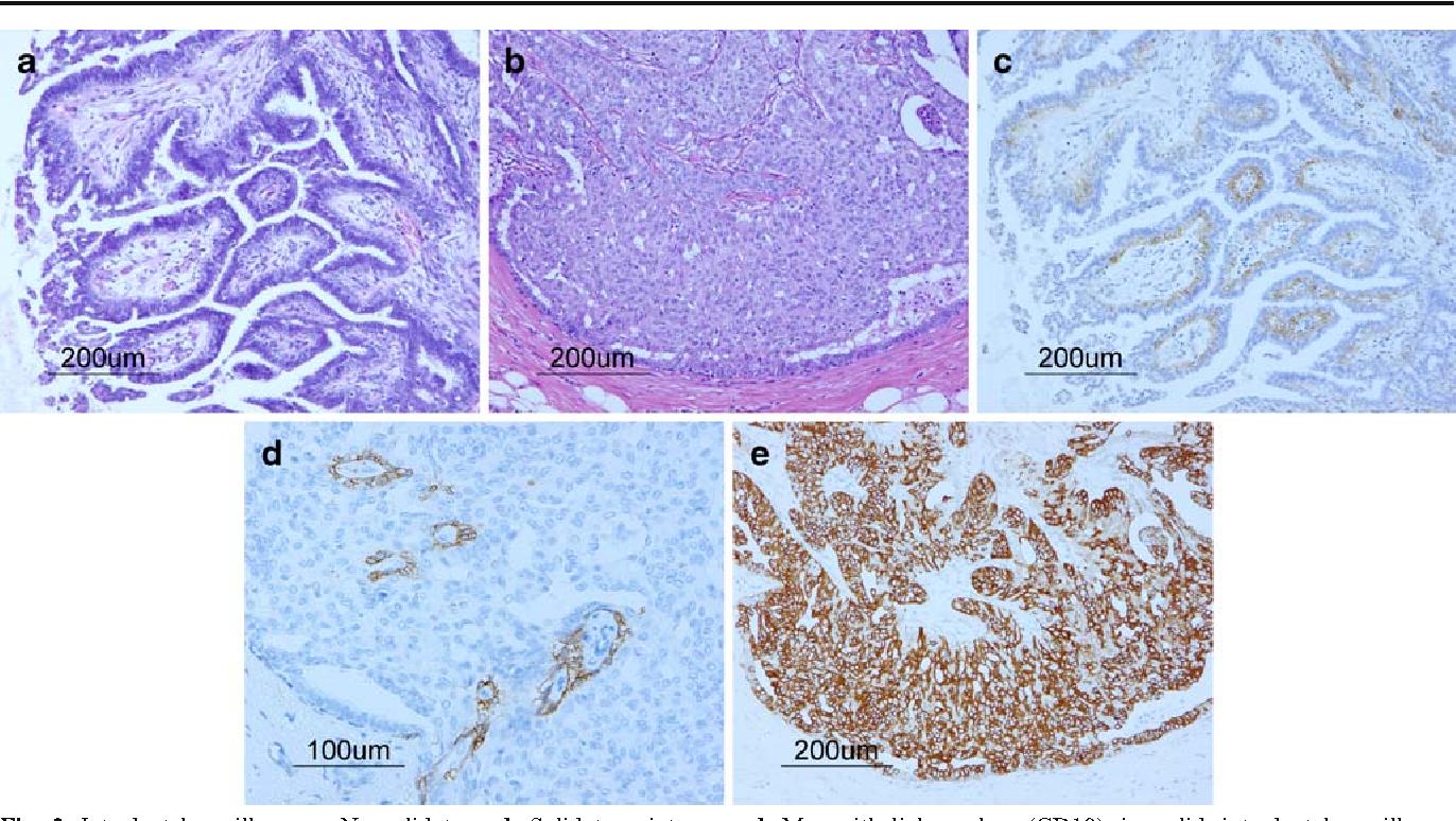 intraductal papilloma carcinoma hpv ne demek