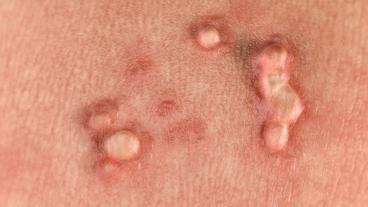 papilloma virus woman virusblock