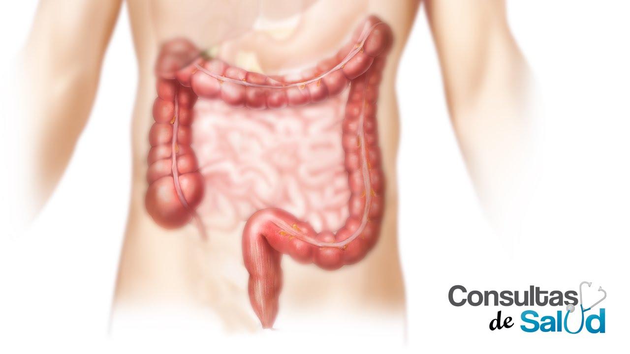 papiloma humano que causa cancer simptome viermi intestinali bebelusi