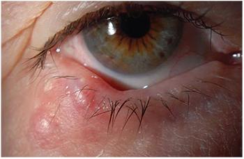 squamous cell papillomas eyelid