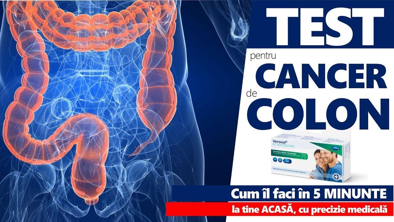 cancerul de colon de la ce se face