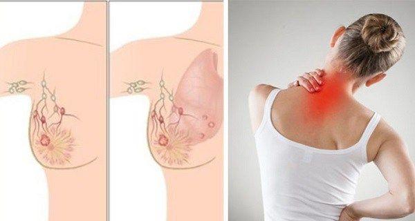 cancer de pancreas o que e cancere hormonale