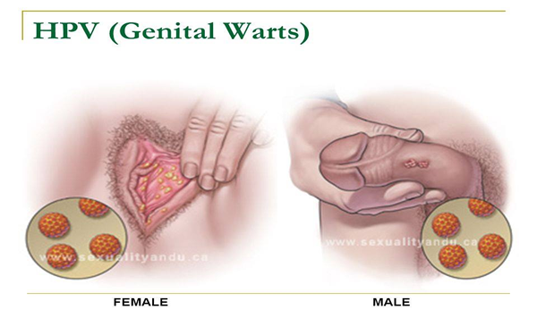 hpv throat infection images