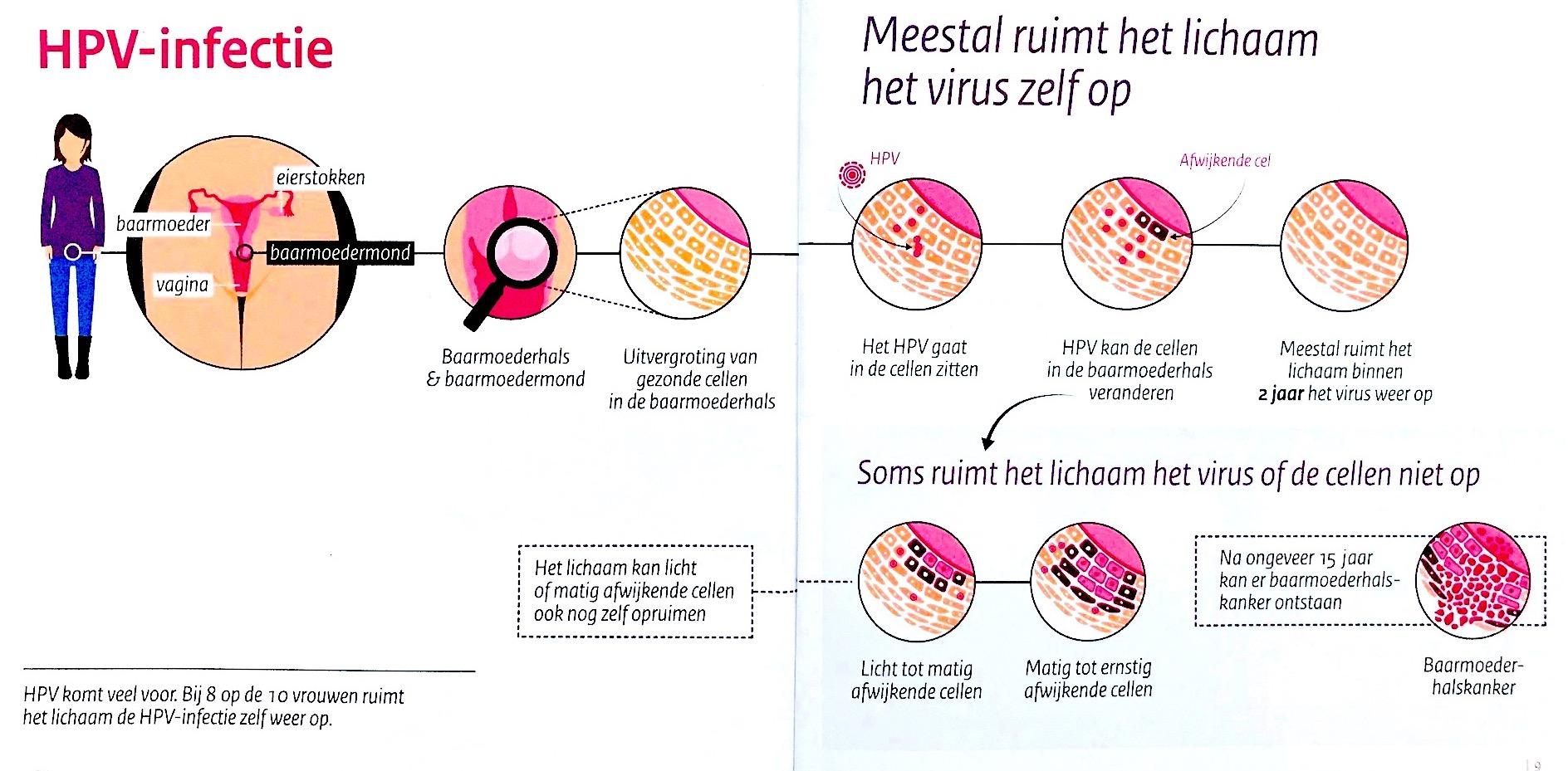 hoe kan je hpv virus krijgen icd 10 code papilloma breast