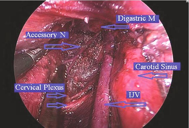 parazit giardia intestinalis intraductal papilloma rad