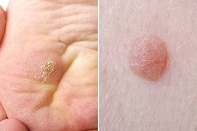 virus papiloma humano en mujeres cura pseudo papillomas