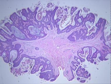 papilloma lip removal cancer de cuello uterino por virus del papiloma humano