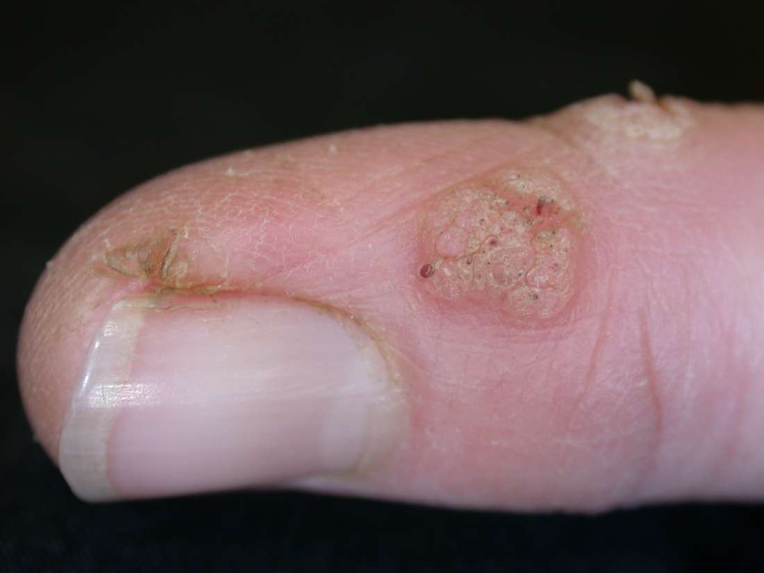 warts on hands after pregnancy