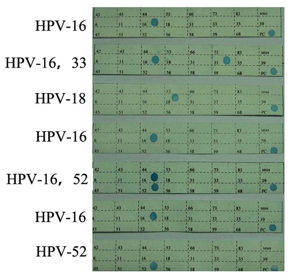 human papillomavirus 16-positive toxine tsst 1 panton valentine
