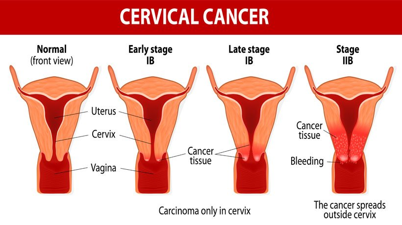 can hpv cause benign tumors