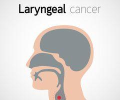 cancer laringian prognostic