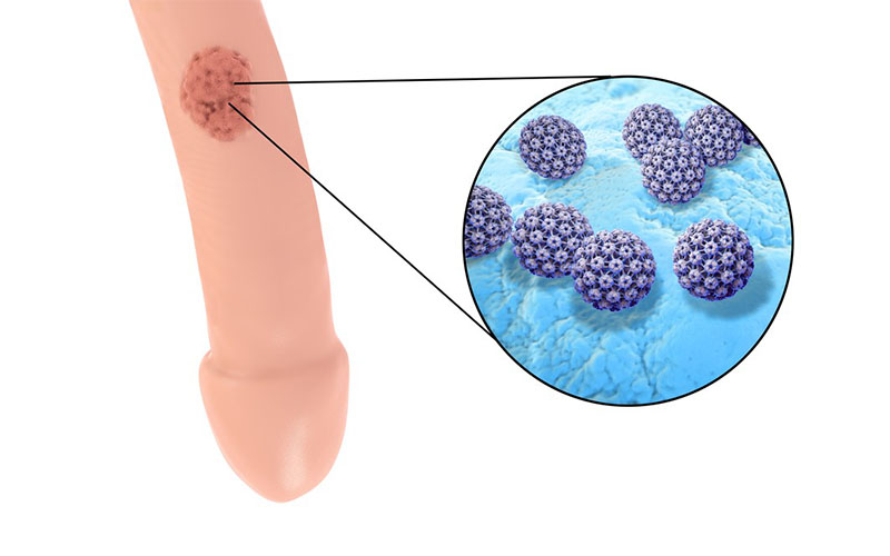 papilloma tonsillare cause
