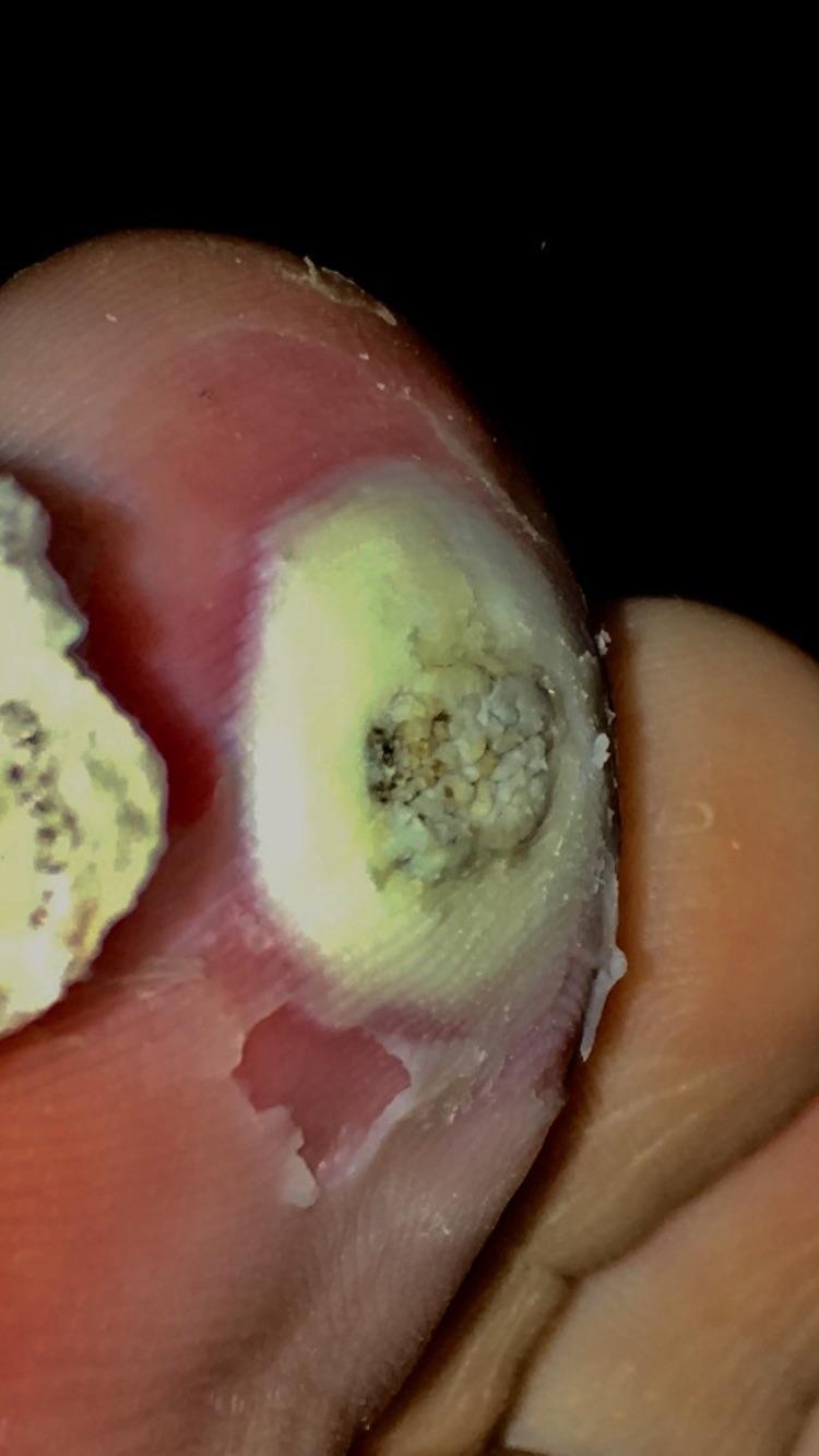 que es papiloma intraductal