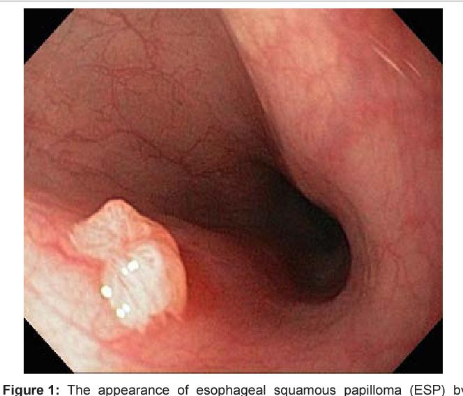 esophageal squamous papilloma