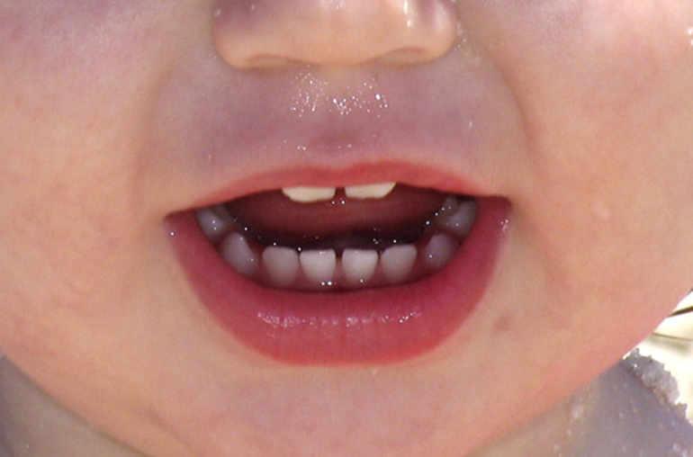 hpv levres bouche papilloma contagio bagno