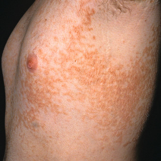 reticulated papillomatosis natural treatment