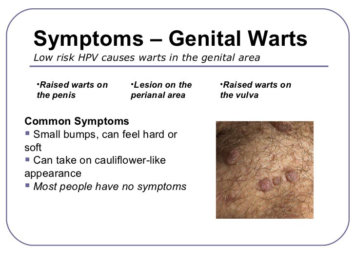 hpv causes symptoms and treatments hpv impfung bag