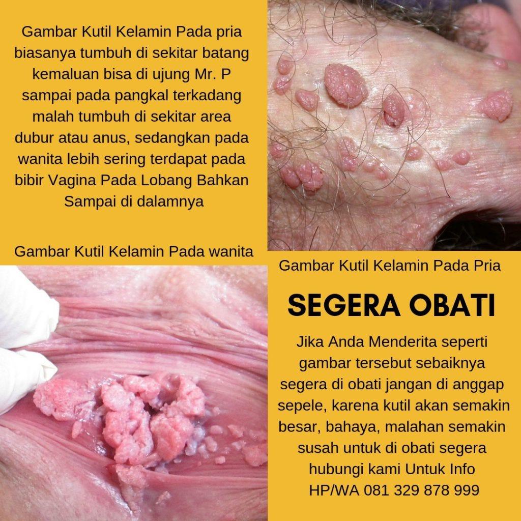 detoxifiere ionica toxine quete