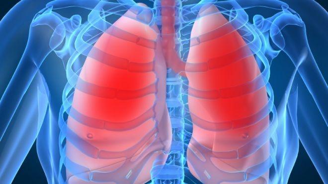 cancer pulmonar fara chimioterapie