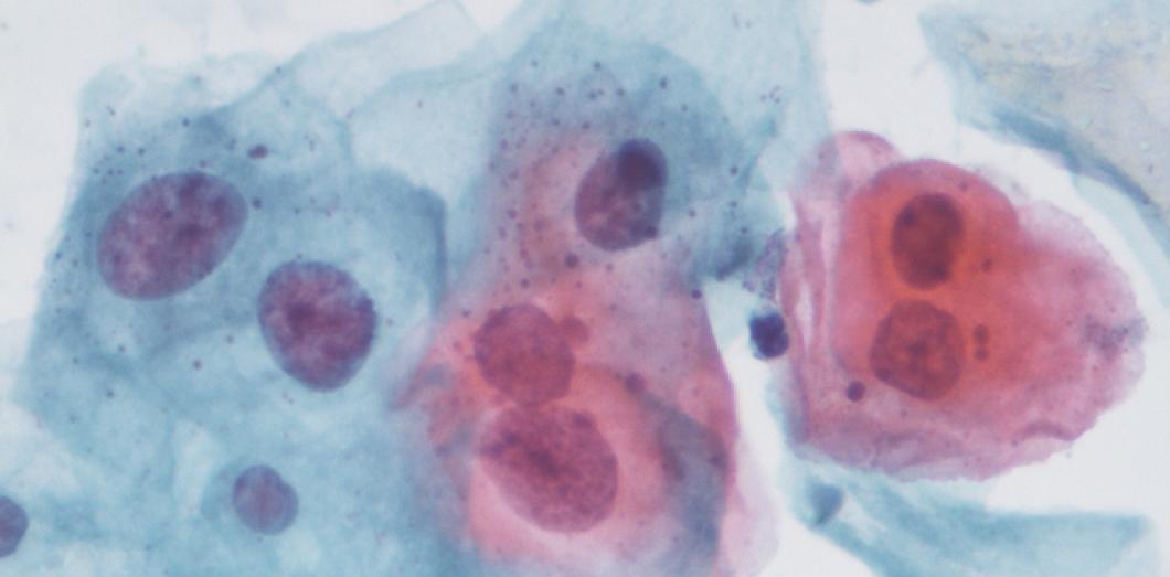 vestibular papillae pictures papillomavirus infection male