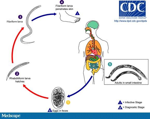 plasturi detoxifiere talpi pareri