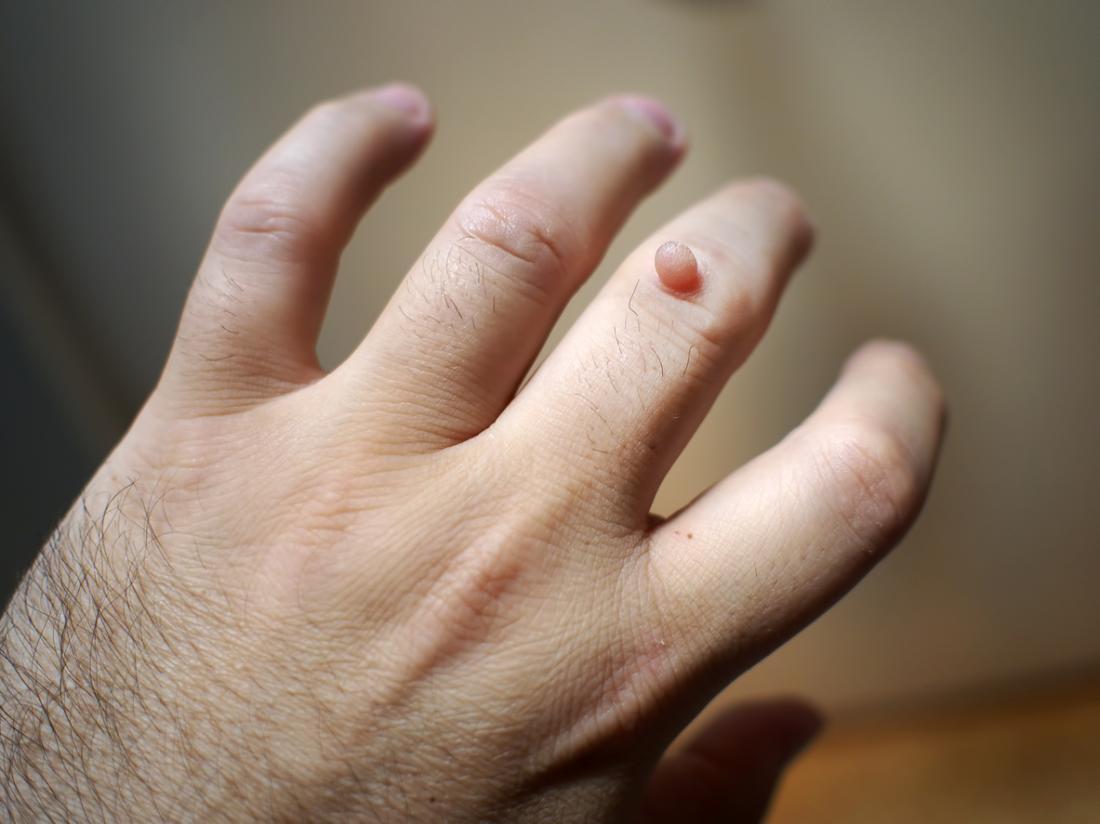 papiloma virus vaccino uomo sintomi papilloma virus uomo